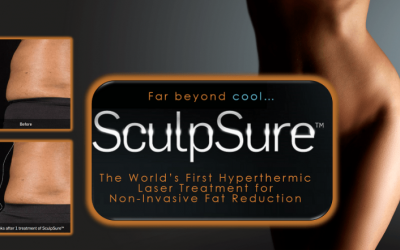 SculpSure Special — $450 off Just in time for Spring!